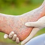 Stem Cell Therapy Can Treat Critical Limb Ischemia