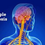 Multiple Sclerosis Causes