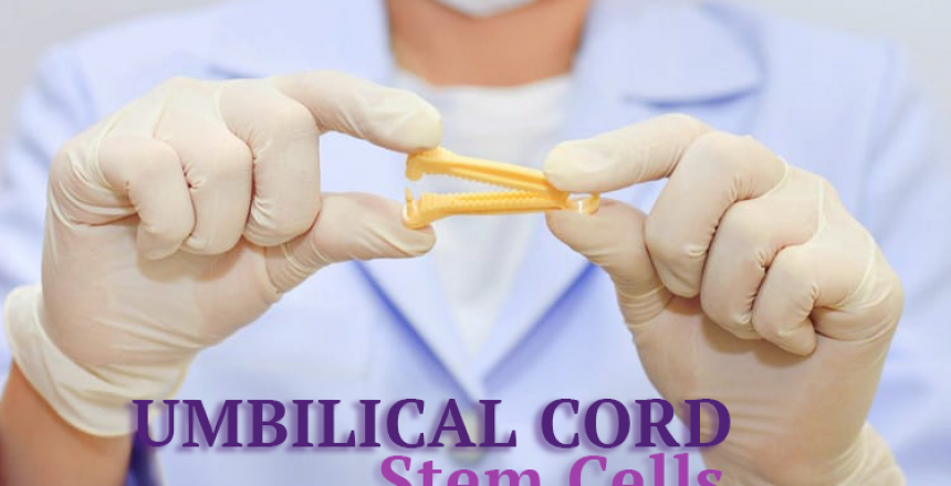 Umbilical Cord Stem Cells Therapy